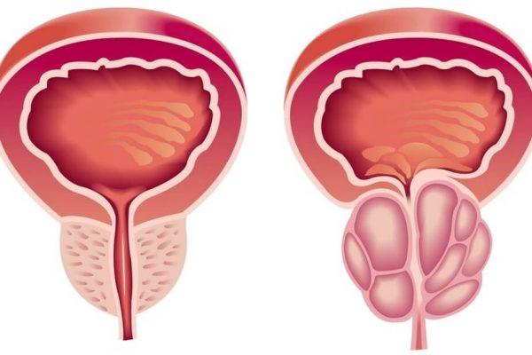 Доброкачественная гиперплазия предстательной железы (аденома простаты)