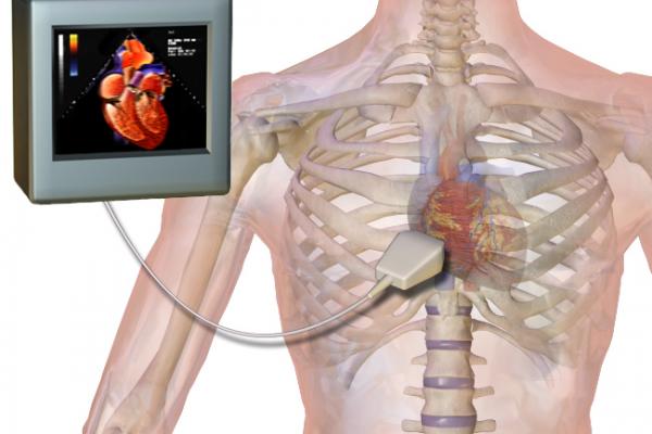 УЗИ сердца — Эхокардиография